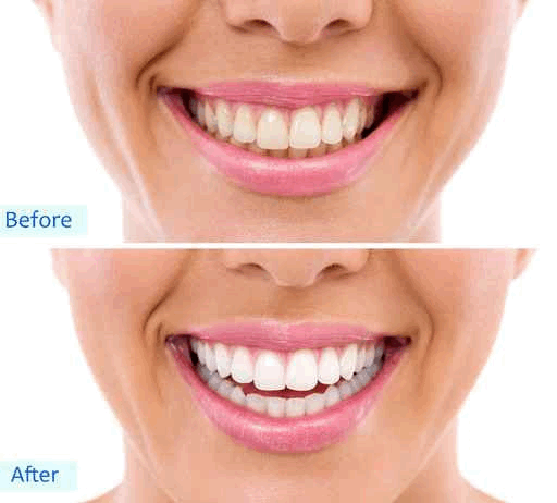Teeth Whitening from Dr. Thomas L Phillips DDS