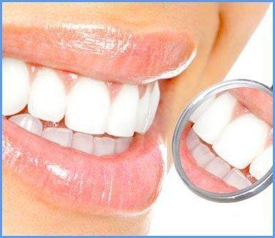 cura denti