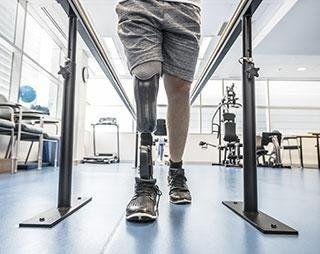 protesi-arti