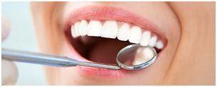 Sbiancamento denti visita dentistica