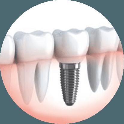 Chirurgia e Implantologia