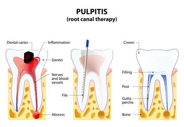 pulpitis root canal therapy