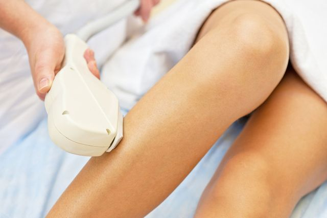 laser hair removal technique