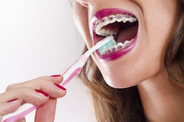 Braces and dental hygiene solutioingenieria Choice Image