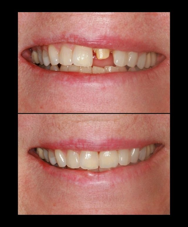 Dental Crowns before and after done by Legacy Dental Arts in Eagle River AK