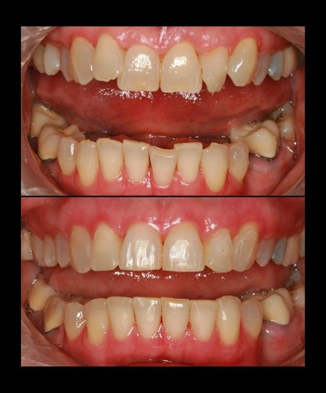 Six month smiles before and after completed at Legacy Dental Arts
