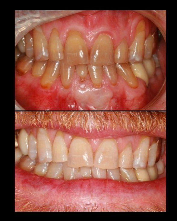 Teeth whitening before and after in Eagle River done by Legacy Dental Arts