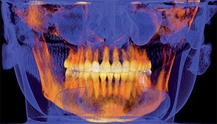 jaw x-ray before sedation dentistry in Eagle River, AK