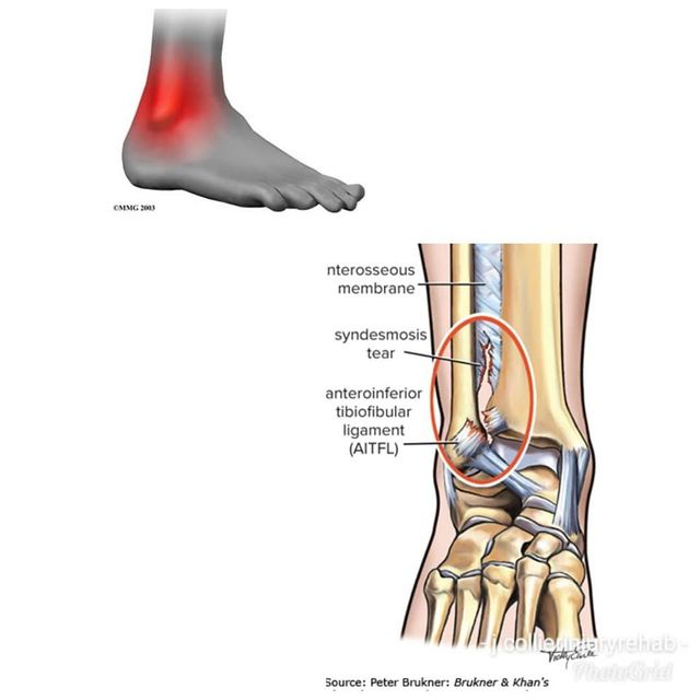 Ankle Syndesmosis