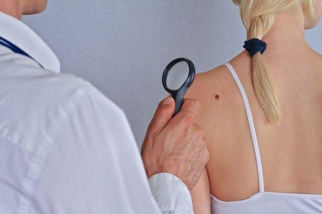 un medico con un camice bianco e una lente di ingrandimento e di fronte una donna girata di spalle con un neo