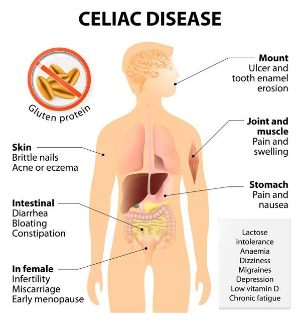 Treating Celiac Disease Naturally