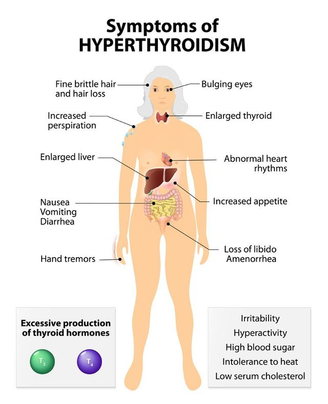 Finding Your Natural Hyperthyroidism Remedy in Brooklyn NY 11223