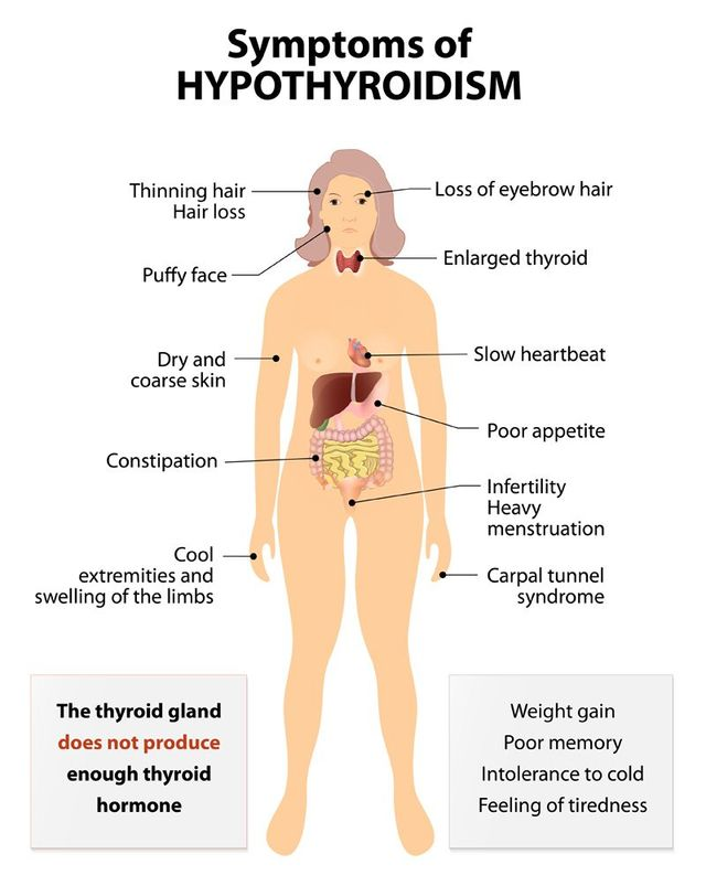 Common Causes of an Underactive Thyroid for Finding Your Natural Hypothyroidism Remedy in Brooklyn NY