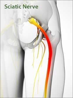Sciatic Pain Relief Treatments in Brooklyn NY 11223