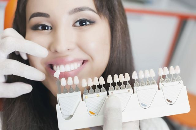 teeth whitening in San Antonio, TX