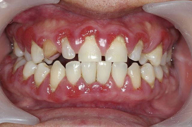 Dental Advice | Root Canals & Invisalign | 6 to 9 Dental