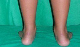 Posizione errata del piede