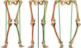 Patologie in seguito a cattiva postura