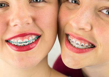 Two girls braces facial