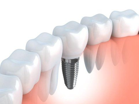 Protesi e implantologia