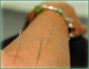 Traditional Acupuncture - Bristol & South Gloucestershire - David Sanders - Acupuncture