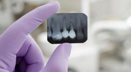 Radiografia dentale