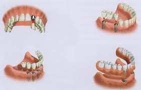 Dental implants in Anderson, SC