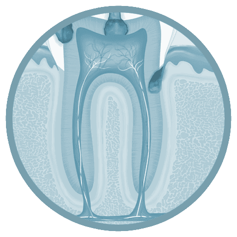 root canal therapy in Buffalo, NY