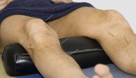 Medical acupuncture and sports massage, Leagrave, Luton