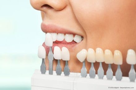 Bilder zahnfarbe b1 contrensubshea: Zahnfarbe
