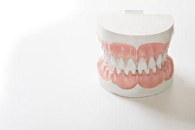 impronta dentale
