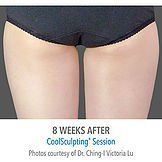 CoolSculpting Before & After Photos Liberty Lake & Spokane