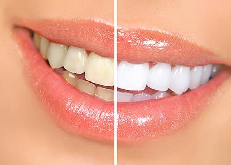 Close up of teeth whitening in Cincinnati