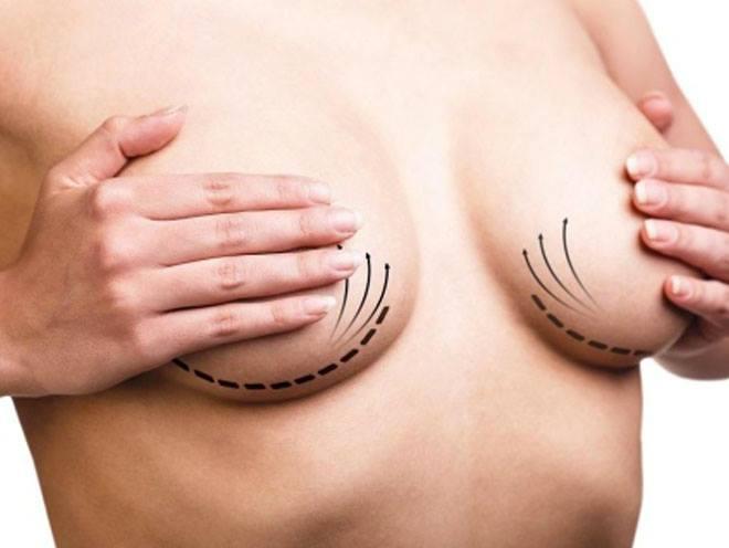 mastoplastica additiva, mastoplastica riduttiva, chirurgia seno, mastopessi, aumento seno, protesi, protesi seno,  capezzoli