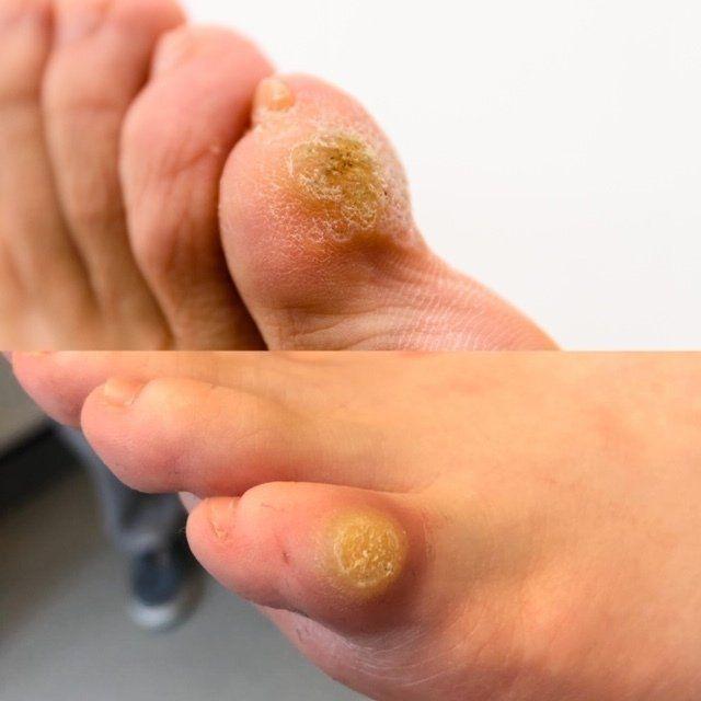 foot verruca causes)