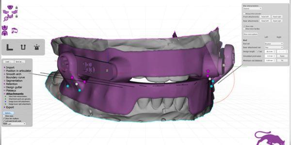 CPAP Alternatives In Houston - Sleep Apnea Oral Appliances | Restore