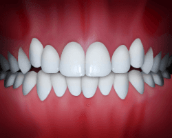 Crowding is a common problem that can be fixed at Regan Orthodontics in Evergreen, Colorado