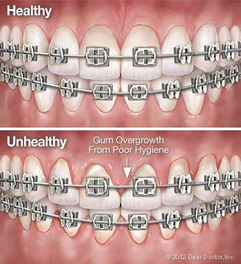 Oral Hygiene tips from Regan Orthodontics in Evergreen, Colorado