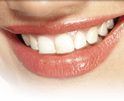 Invisalign at Regan Orthodontics in Evergreen, Colorado
