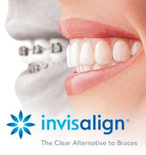 invisalign clear aligners at Regan Orthodontics in Evergreen, Colorado