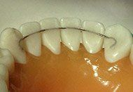 Fixed Retainers at Regan Orthodontics in Evergreen, Colorado