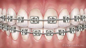Metal Braces at Regan Orthodontics in Evergreen, Colorado