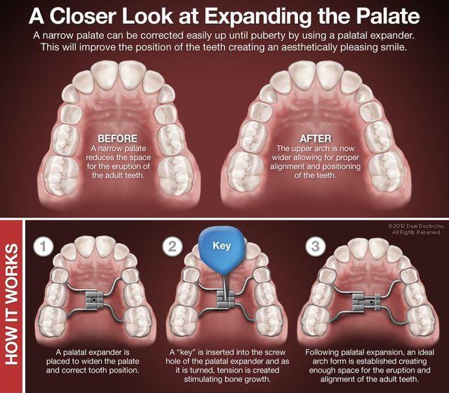 Palatal Expanders at Regan Orthodontics in Evergreen, Colorado