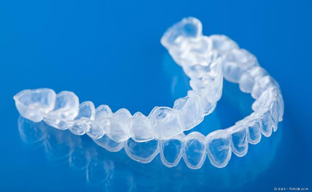 Home-Bleaching: Folien, in die das Bleaching-Gel eingefüllt wird und die anschließend über die Zähne gestülpt werden