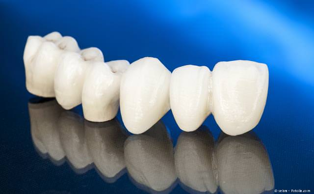 Zahnbrücke aus reiner Keramik