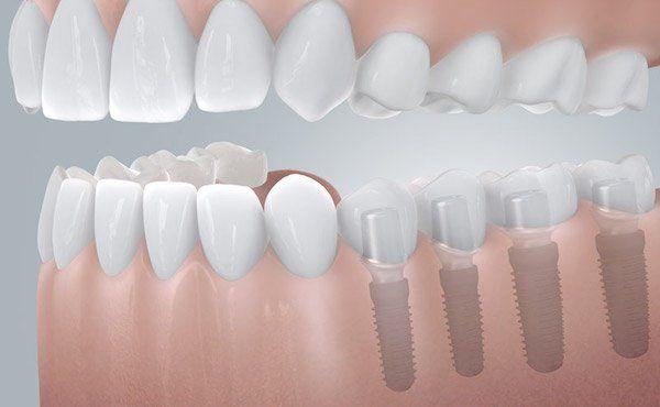 Stelle zahn graue Zahnmedizinische Fachangestellte