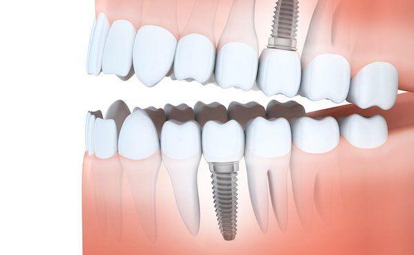 implantat statt zahnbr cke zahnarzt springe bennigsen dr riegelmann. Black Bedroom Furniture Sets. Home Design Ideas