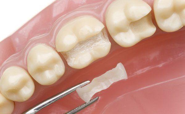 Graue verfärbung zahn Zahnverfärbungen beim