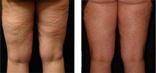 gambe di donna prima e dopo trattamento Lpg Endermologie