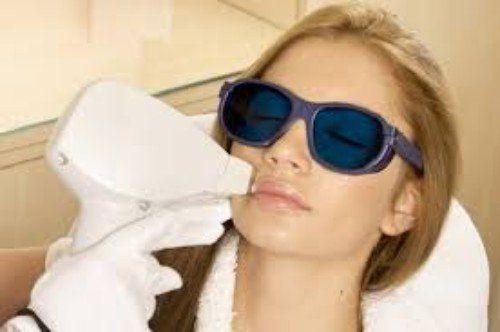 estetista esegue epilazione con luce pulsata su viso di donna